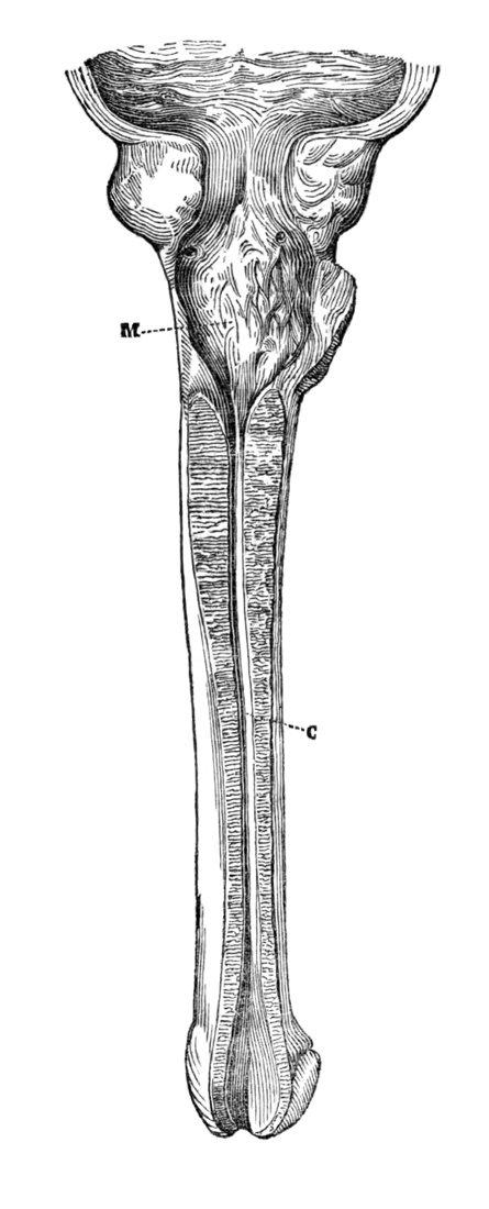 Estenosis Panuretral o estenosis de larga evolución (Leroy-d'Étiolles, 1845)