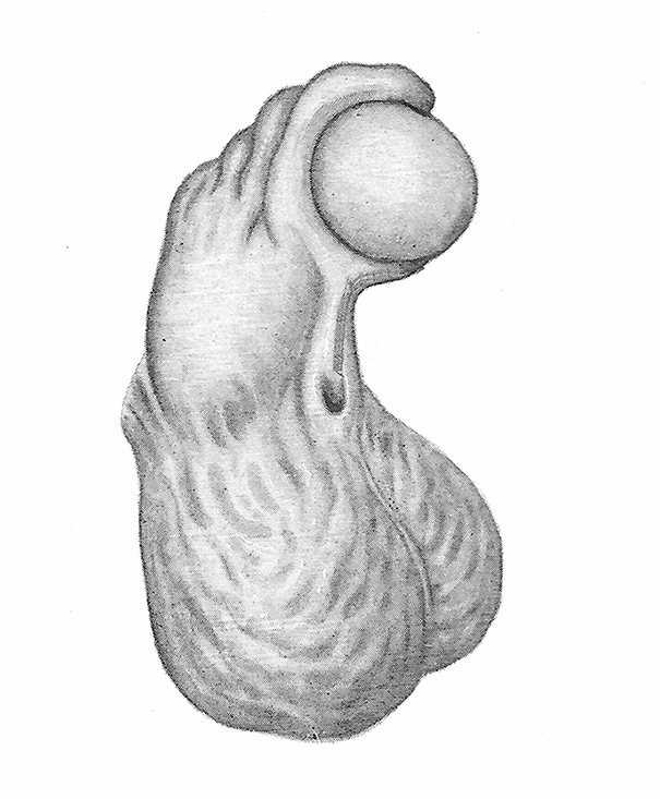 Incurvación del pene en Hipospadias (Lurz, 1969).