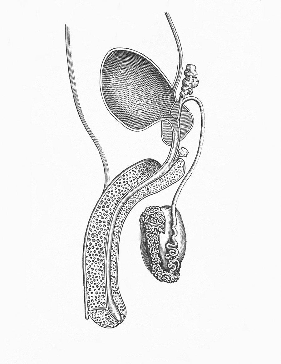Una estenosis uretral puede causar una epididimitis aguda por la aparición de reflujo de orina infectada hacia las vías genitales